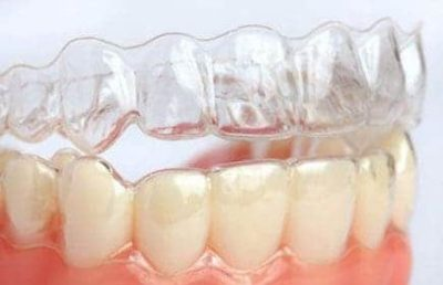 Aparelho dental Invisalign em Ji-Paraná