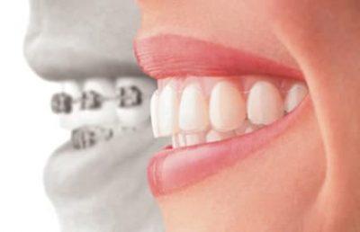 Aparelho dentário invisalign em Ji-Paraná