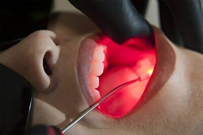 Laserterapia odontológica em Ji-Paraná