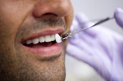 Lente dental em Ji-Paraná